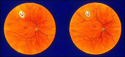 Laser for Retinal Tear
